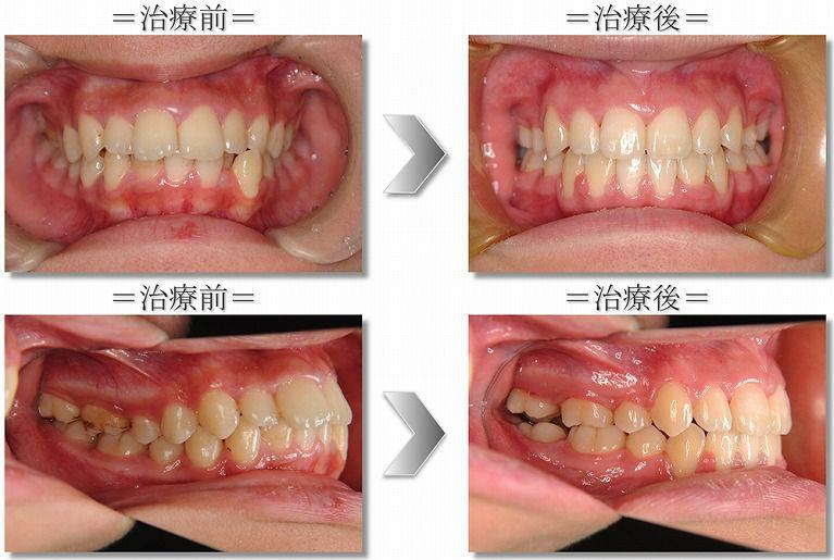 上下顎前突症例1