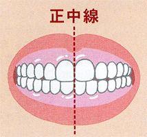 左(図2)