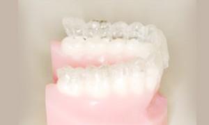 歯を大きく移動できない