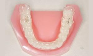 歯根を動かすのが極めて困難